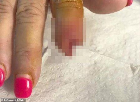 Бойжеткен салонда маникюр жасатамын деп саусағының бір бөлігінен айырылды